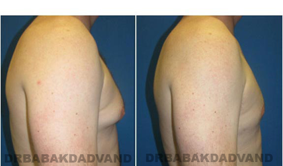 Gynecomastia. Before and After Treatment Photos - male, right side view (patient 1)
