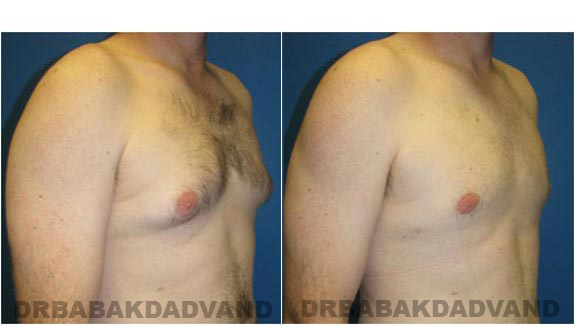 Gynecomastia. Before and After Treatment Photos - male, right side oblique view (patient 1)
