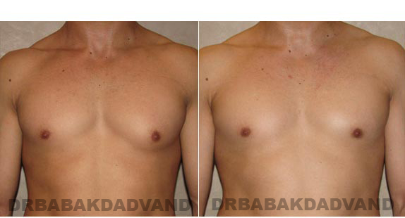 Gynecomastia. Before and After Treatment Photos - male - front view (patient - 7)
