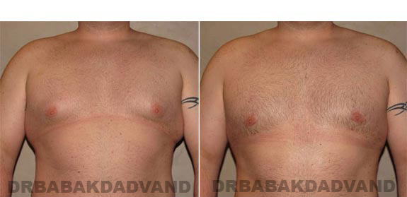 Gynecomastia. Before and After Treatment Photos - male, front view (patient 10)