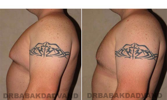 Gynecomastia. Before and After Treatment Photos - male, left side view (patient 10)