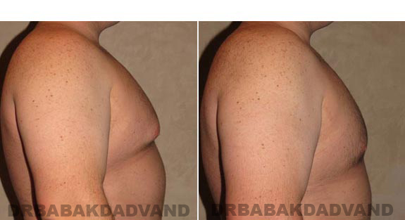 Gynecomastia. Before and After Treatment Photos - male, right side view (patient 10)