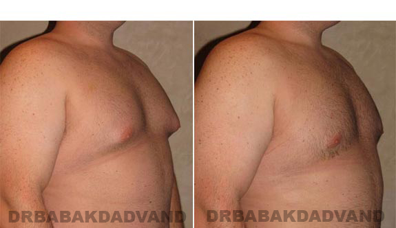 Gynecomastia. Before and After Treatment Photos - male, right side oblique view (patient 10)
