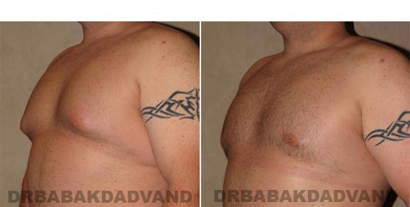 Gynecomastia. Before and After Treatment Photos - male, left side oblique view (patient 10)