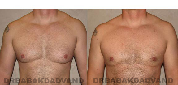 Gynecomastia. Before and After Treatment Photos - male, front view (patient 11)
