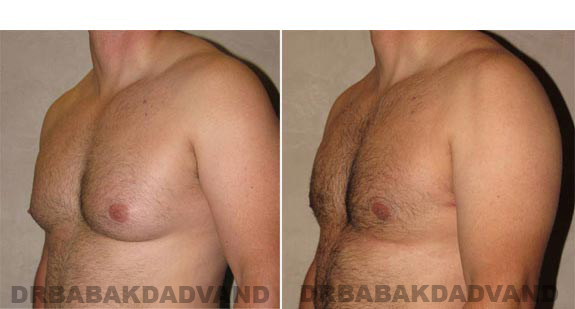 Gynecomastia. Before and After Treatment Photos - male, left side oblique view (patient 11)