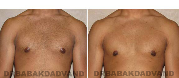 Gynecomastia. Before and After Treatment Photos - male, front view (patient 12)