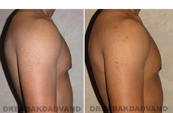 Gynecomastia. Before and After Treatment Photos - male, right side view (patient 12)