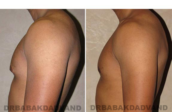 Gynecomastia. Before and After Treatment Photos - male, left side view (patient 12)