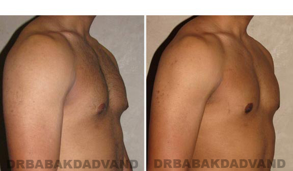 Gynecomastia. Before and After Treatment Photos - male, right side oblique view (patient 12)