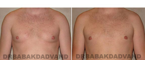 Gynecomastia. Before and After Treatment Photos - male, front view (patient 14)