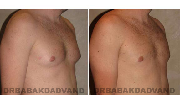 Gynecomastia. Before and After Treatment Photos - male, right side oblique view (patient 14)