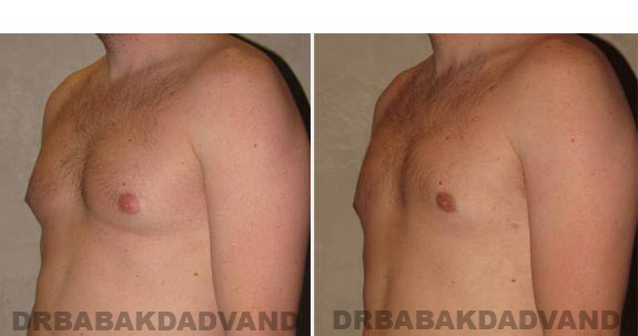 Gynecomastia. Before and After Treatment Photos - male, left side oblique view (patient 14)