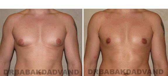 Gynecomastia. Before and After Treatment Photos - male - front view (patient - 8)