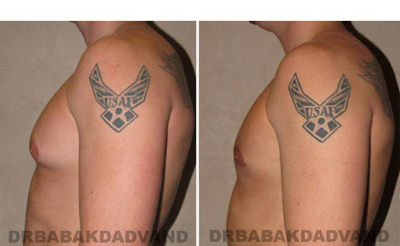 Gynecomastia. Before and After Treatment Photos - male - left side view (patient - 8)