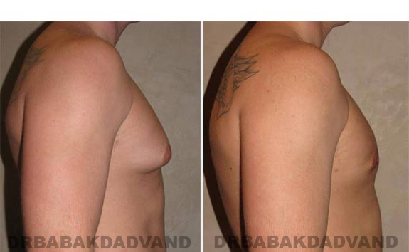 Gynecomastia. Before and After Treatment Photos - male - right side view (patient - 8)