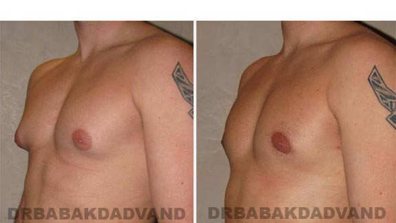 Gynecomastia. Before and After Treatment Photos - male - left side oblique view (patient 8)