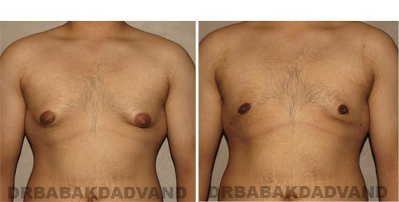 Gynecomastia. Before and After Treatment Photos - male, front view (patient 16)