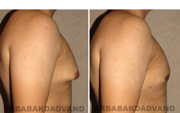 Gynecomastia. Before and After Treatment Photos - male, right side view (patient 16)