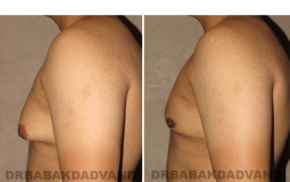 Gynecomastia. Before and After Treatment Photos - male, left side view (patient 16)