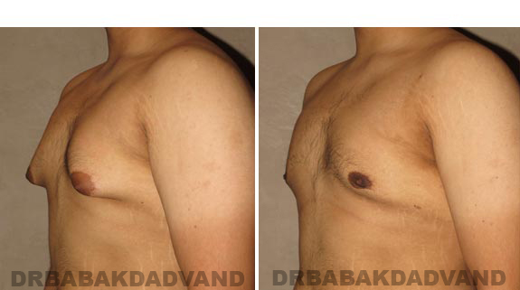 Gynecomastia. Before and After Treatment Photos - male, left side oblique view (patient 16)