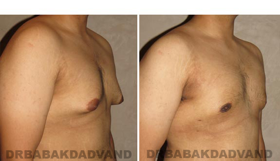 Gynecomastia. Before and After Treatment Photos - male, right side oblique view (patient 16)