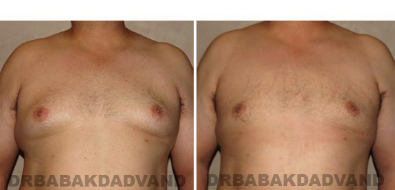 Gynecomastia. Before and After Treatment Photos - male, front view (patient 15)