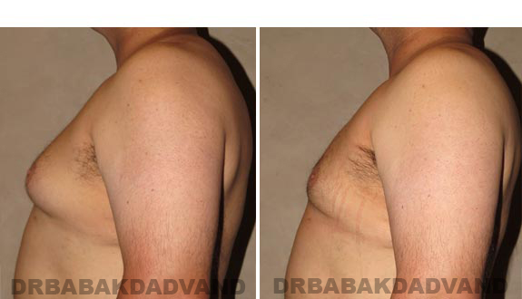 Gynecomastia. Before and After Treatment Photos - male, left side view (patient 15)