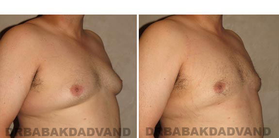 Gynecomastia. Before and After Treatment Photos - male, right side oblique view (patient 15)