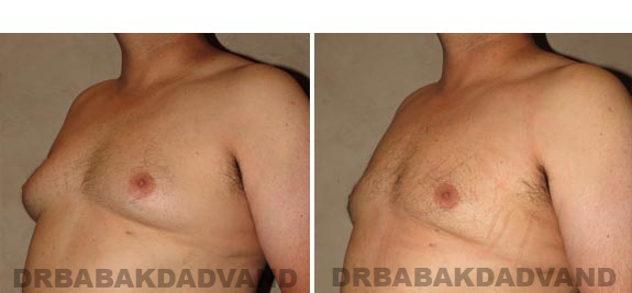 Gynecomastia. Before and After Treatment Photos - male, left side oblique view (patient 15)