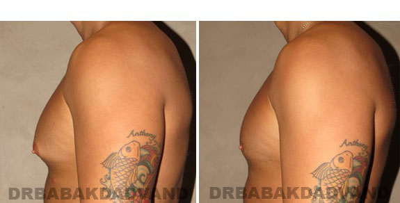 Gynecomastia. Before and After Treatment Photos - male, left side view (patient 3)