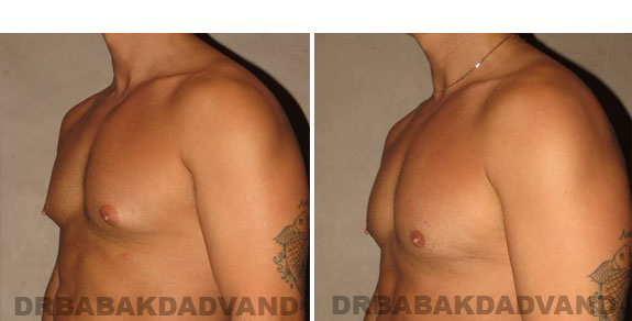 Gynecomastia. Before and After Treatment Photos - male, left side oblique view (patient 3)