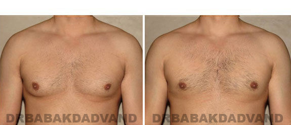 Gynecomastia. Before and After Treatment Photos - male - front view (patient - 5)