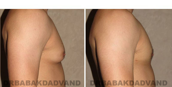Gynecomastia. Before and After Treatment Photos - male - right side view (patient - 5)