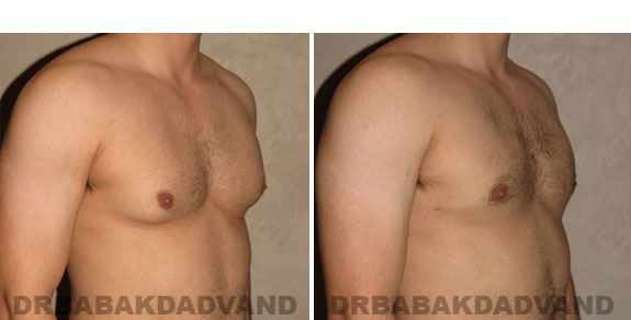 Gynecomastia. Before and After Treatment Photos - male - right side oblique view (patient - 5)