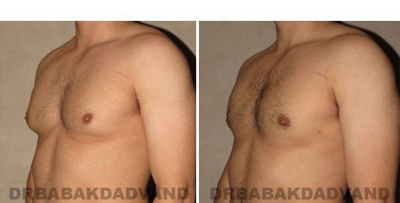 Gynecomastia. Before and After Treatment Photos - male - left side view (patient - 5)