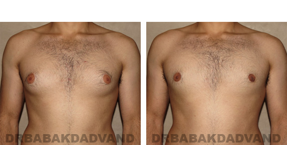 Gynecomastia. Before and After Treatment Photos - male, front view (patient 19)