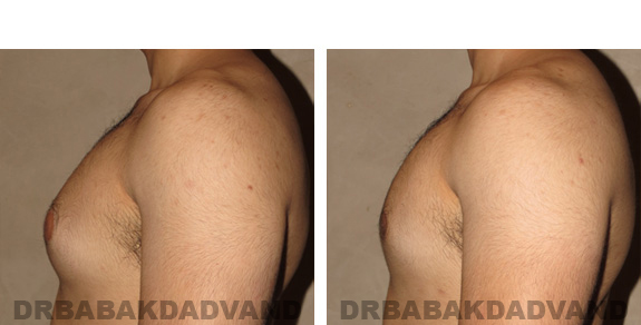 Gynecomastia. Before and After Treatment Photos - male, left side view (patient 19)