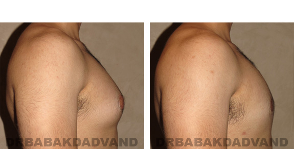 Gynecomastia. Before and After Treatment Photos - male, right side view (patient 19)