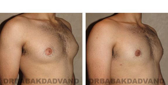 Gynecomastia. Before and After Treatment Photos - male, right side oblique view (patient 19)
