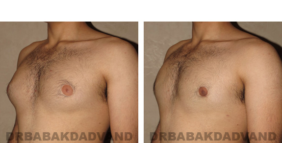 Gynecomastia. Before and After Treatment Photos - male, left side oblique view (patient 19)