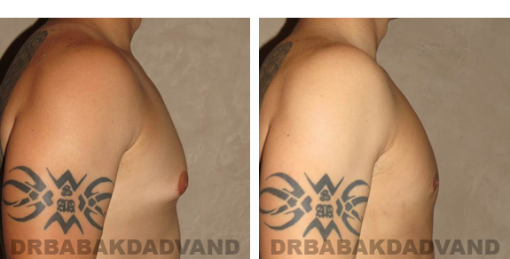 Gynecomastia. Before and After Treatment Photos - male, right side oblique view (patient 21)