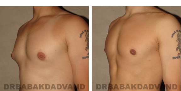 Gynecomastia. Before and After Treatment Photos - male, left side view (patient 21)