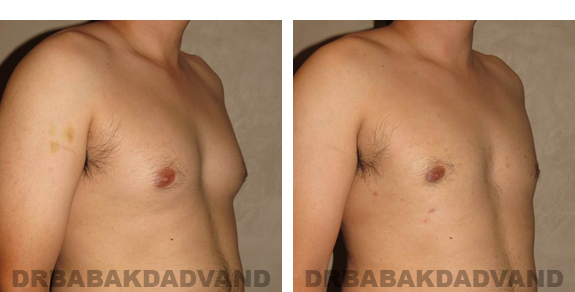 Gynecomastia. Before and After Treatment Photos - male, right side view (patient 22)