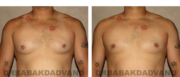 Gynecomastia. Before and After Treatment Photos - male, front view (patient 23)