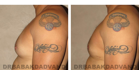 Gynecomastia. Before and After Treatment Photos - male, left side view (patient 23)
