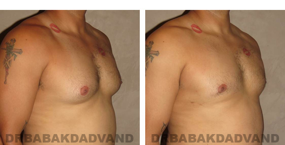 Gynecomastia. Before and After Treatment Photos - male, right side oblique view (patient 23)