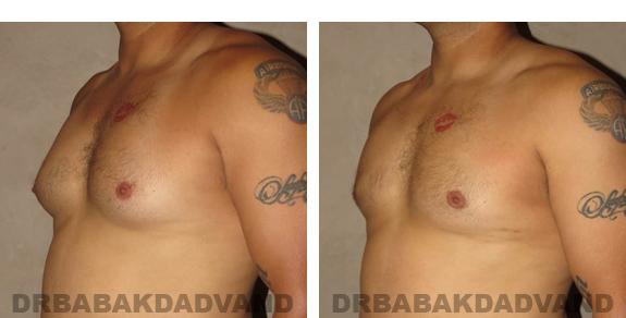 Gynecomastia. Before and After Treatment Photos - male, left side oblique view (patient 23)