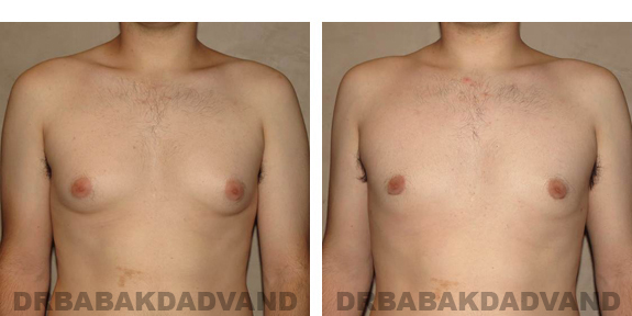 Gynecomastia. Before and After Treatment Photos - male, front view (patient 24)