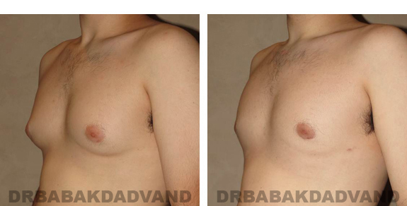 Gynecomastia. Before and After Treatment Photos - male, left side oblique view (patient 24)